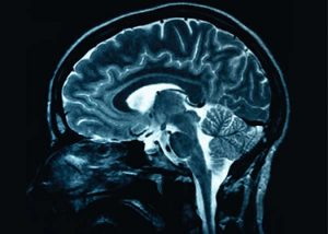 An image of a brain scan for CNS Pharmacology course